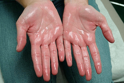 Excessive Sweating of the Palms